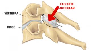 Faccette articolari - Centro Fisioterapico Aurelio