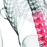 Sindrome faccette articolari - Centro Fisioterapico Aurelio