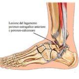 Lesione legamento - Centro Fisioterapico Aurelio